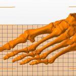 Фото 3D-сканирования костей ноги