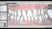 ПО AGE Solutions S.r.l. Maestro 3D Ortho Studio 2