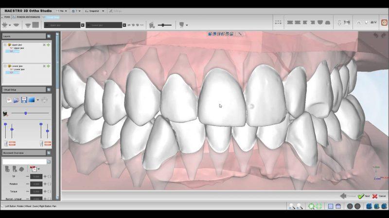 Фото ПО AGE Solutions S.r.l. Maestro 3D Ortho Studio 2