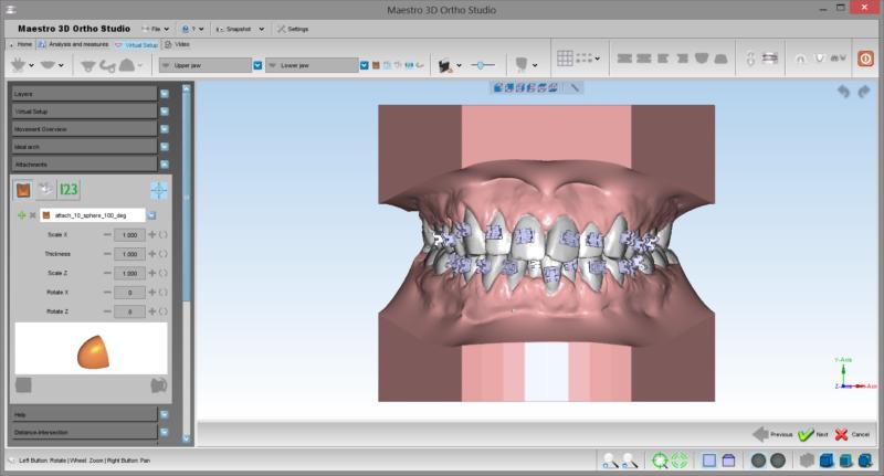 Фото ПО AGE Solutions S.r.l. Maestro 3D Ortho Studio 3