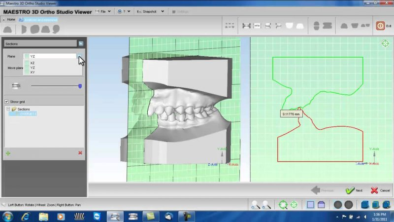 Фото ПО AGE Solutions S.r.l. Maestro 3D Ortho Studio 5