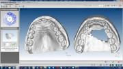ПО AGE Solutions S.r.l. Maestro 3D Ortho Studio 6