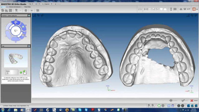 Фото ПО AGE Solutions S.r.l. Maestro 3D Ortho Studio 6