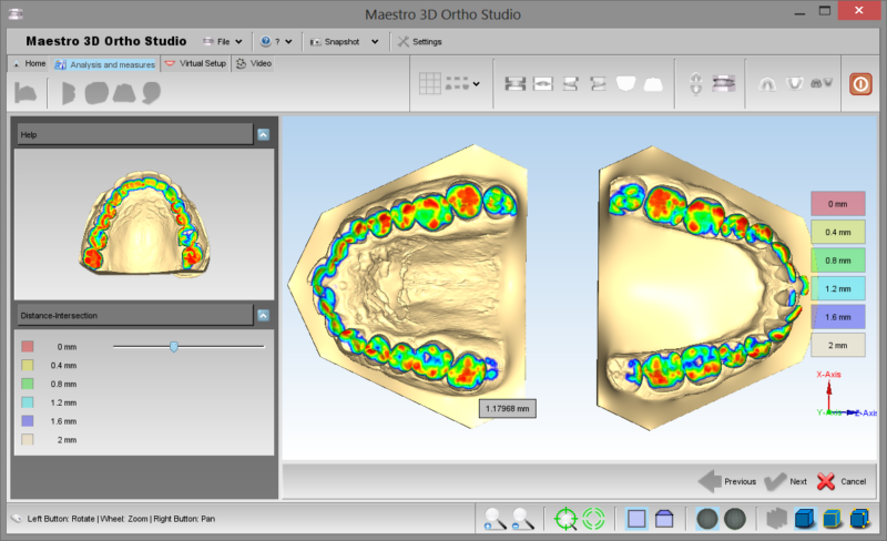 Фото ПО AGE Solutions S.r.l. Maestro 3D Ortho Studio 9