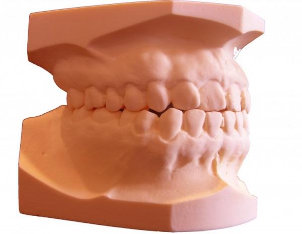 Фото фотополимер для 3D-принтера E-Denstone 4