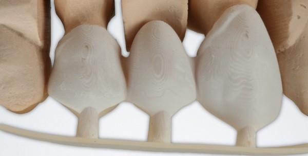 Фото фотополимер для 3D-принтера E-Dent 1