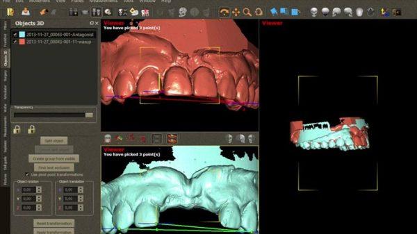 Фото ПО для стоматологии DDS-Pro