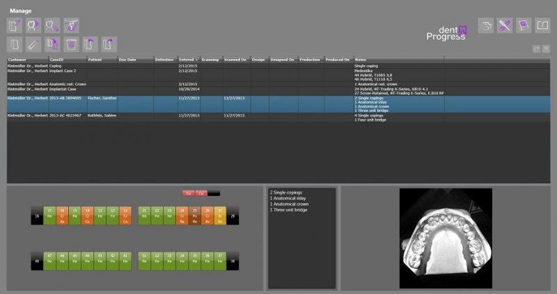 Фото Медицинское ПО для для 3D сканеров dentProgress_1