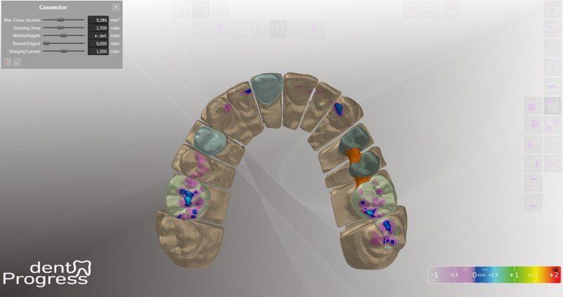 Фото Медицинское ПО для для 3D сканеров dentProgress_3