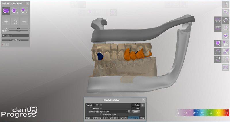 Фото Медицинское ПО для для 3D сканеров dentProgress_4