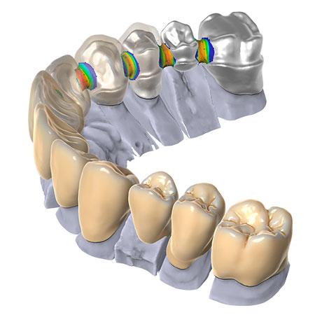 Фото Модуль Exocad® DentalCAD