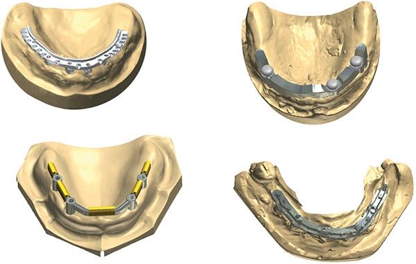 Фото ПО для стоматологии Abutment Designer and Implant Bar and Bridge Design_2