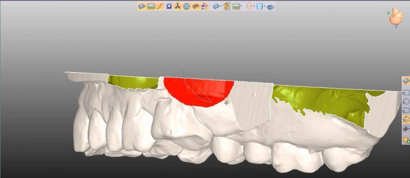 Фото ПО для стоматологии Avantis3D_1