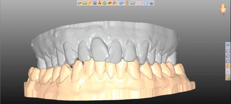 Фото ПО для стоматологии Avantis3D_2