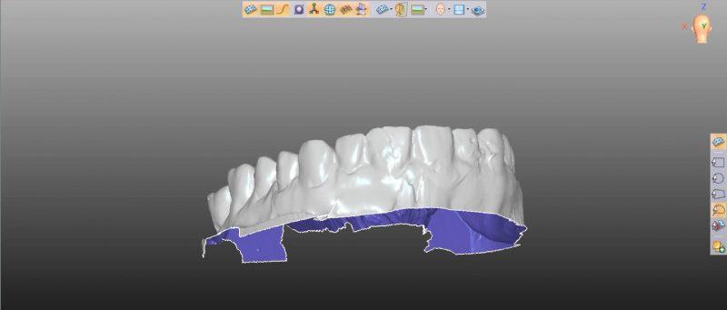 Фото ПО для стоматологии Avantis3D_3