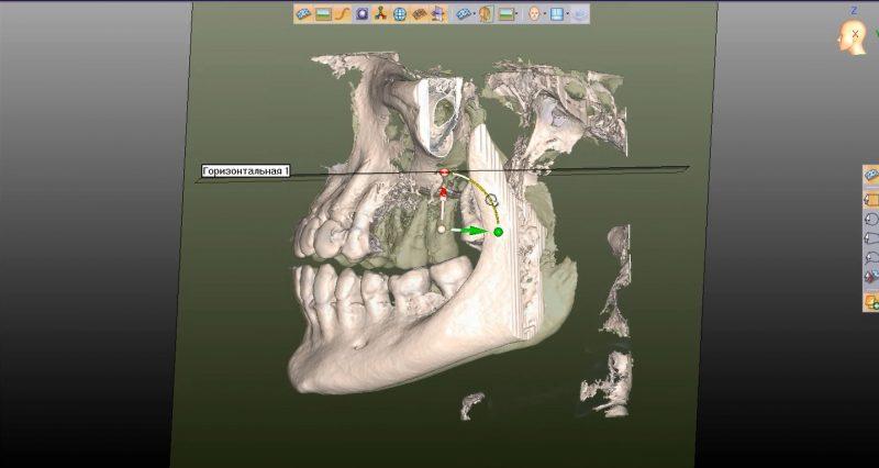 Фото ПО для стоматологии Avantis3D_4