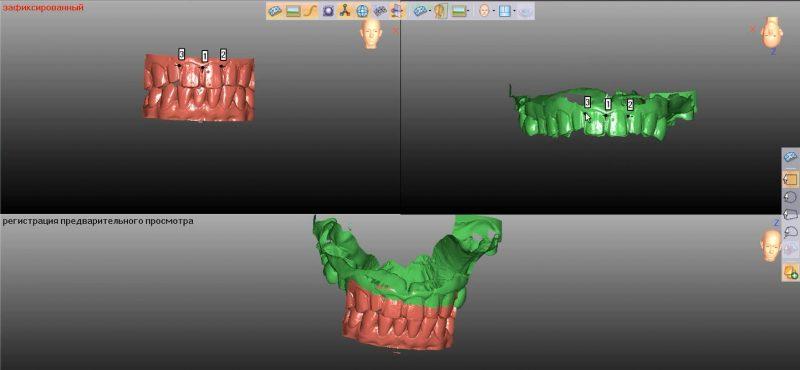 Фото ПО для стоматологии Avantis3D_5
