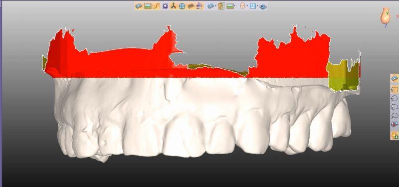 Фото ПО для стоматологии Avantis3D_6