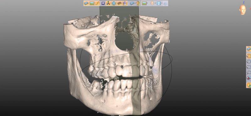 Фото ПО для стоматологии Avantis3D_7