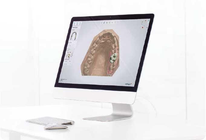 Фото ПО для стоматологии Dental System™ Standard индивидуальное рабочее место_1