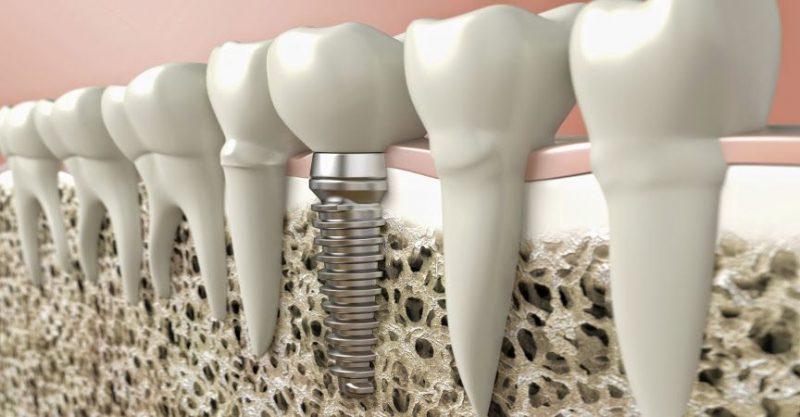 Фото ПО для стоматологии Implant-Assistant_1