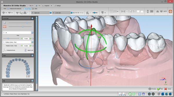 Фото ПО для стоматологии Maestro 3D Ortho Studio