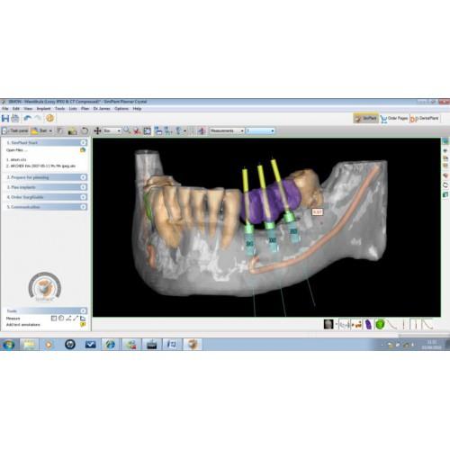 Фото ПО для стоматологии SimPlant