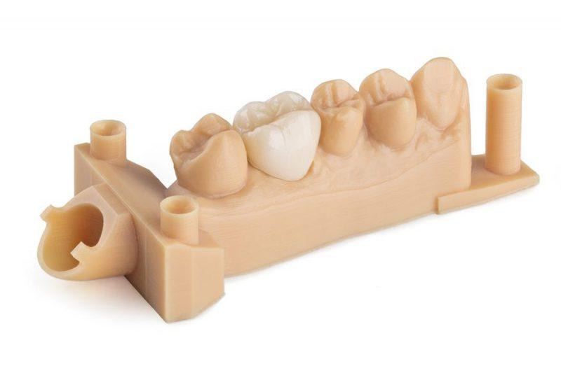 Изображение модели, напечатанной фотополимером Formlabs Dental Model (1)