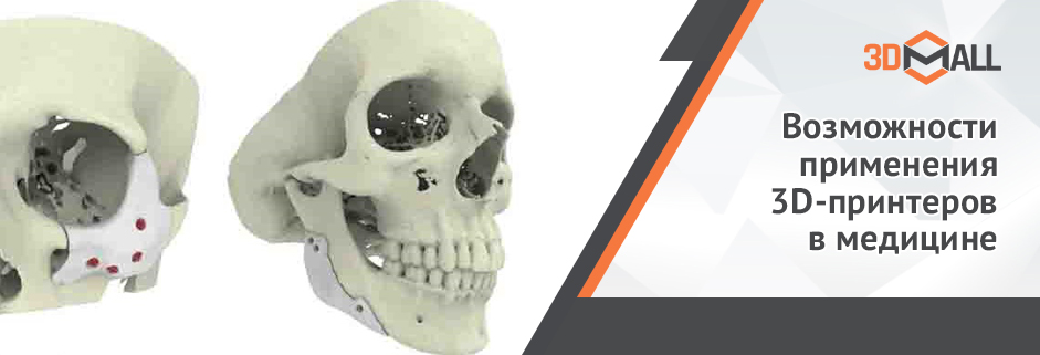 Баннер Возможности применения 3D принтеров в медицине