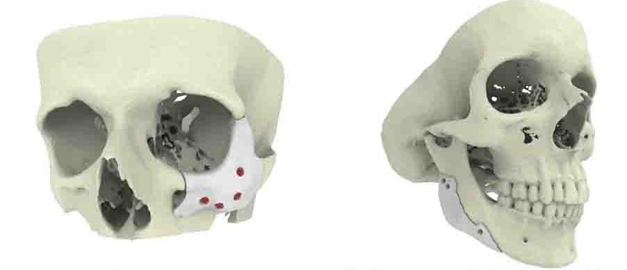Фото Возможности применения 3D принтеров в медицине