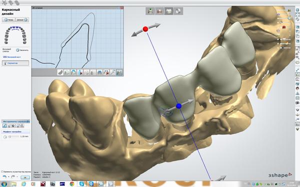 Фото Применение CAD CAM систем в стоматологии 1