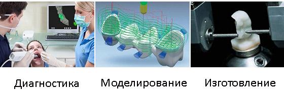 Фото Применение CAD CAM систем в стоматологии 2