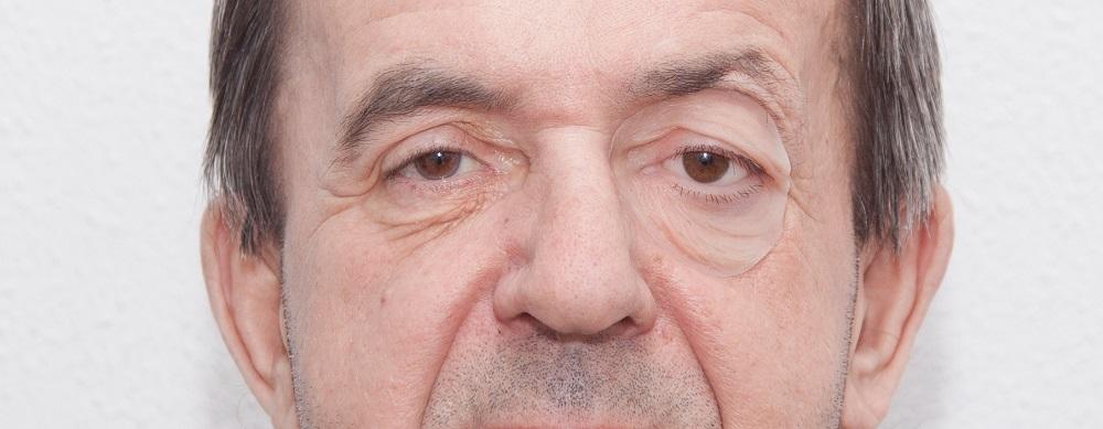 Фото Печать искусственных частей лица 6