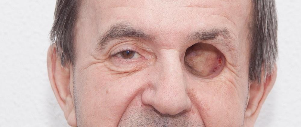 Фото Печать искусственных частей лица 4