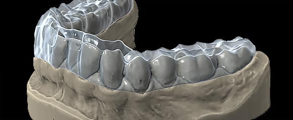 Фото Модуль шинирования зубов exocad