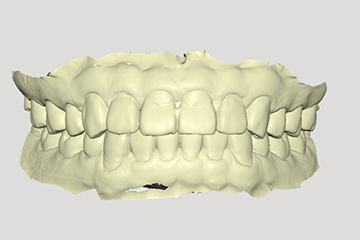 Фото 3D сканера Medit T 2