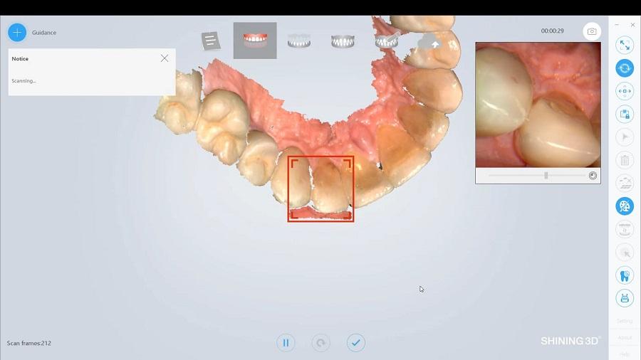 Фото Интраоральные 3D-сканеры 5
