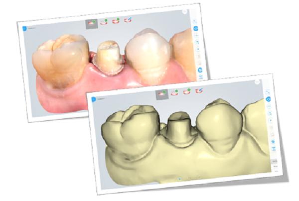 Фото интраорального сканера Shining 3D Aoralscan 11