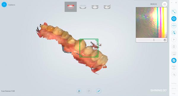 Фото интраорального сканера Shining 3D Aoralscan 12