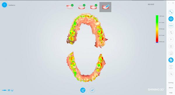 Фото интраорального сканера Shining 3D Aoralscan 14