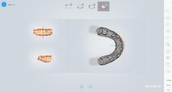 Фото интраорального сканера Shining 3D Aoralscan 16