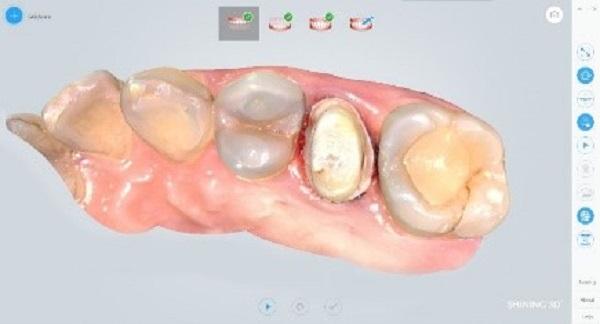 Фото интраорального сканера Shining 3D Aoralscan 20