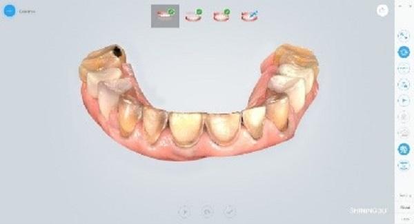 Фото интраорального сканера Shining 3D Aoralscan 21