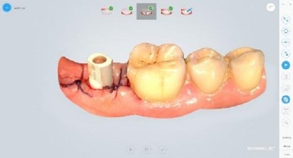 Фото интраорального сканера Shining 3D Aoralscan 22