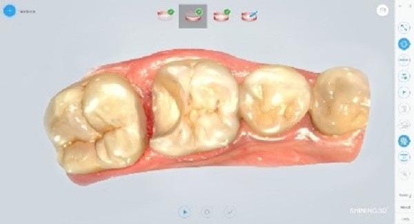 Фото интраорального сканера Shining 3D Aoralscan 24